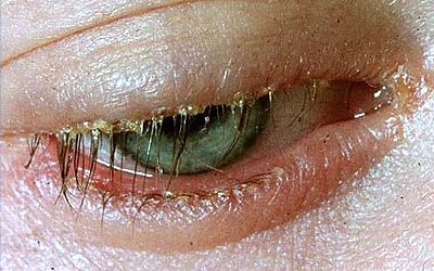 Closeup of an eye with blepharitis