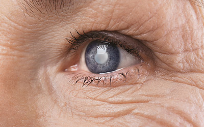 Closeup of an eye with a cataract
