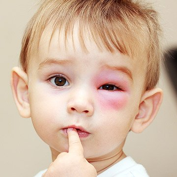 Closeup of child with a swollen eye