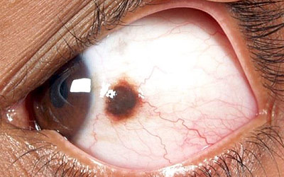 Closeup of an Eye Lesion
