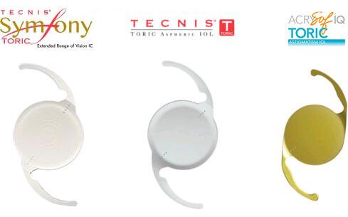 Toric Lens Implant