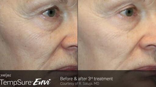 TempSure Envi Before & After 3rd Treatment